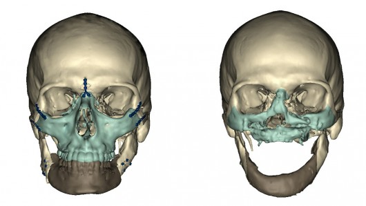 Face Transplant CT scan images