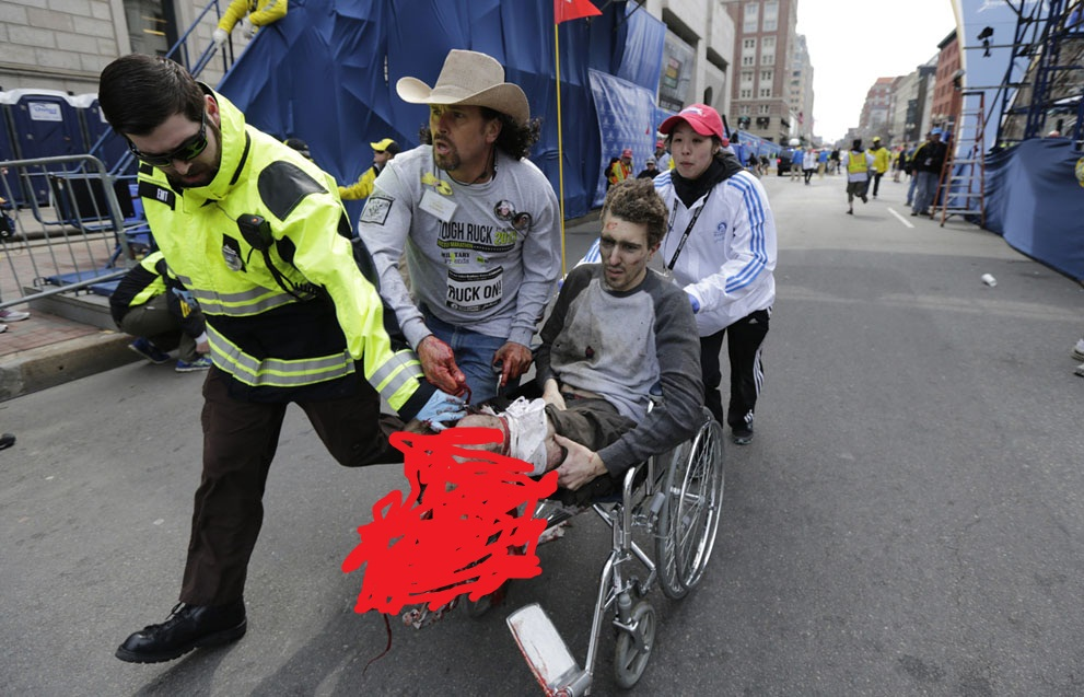 a man lost his leg during boston  bomb blast