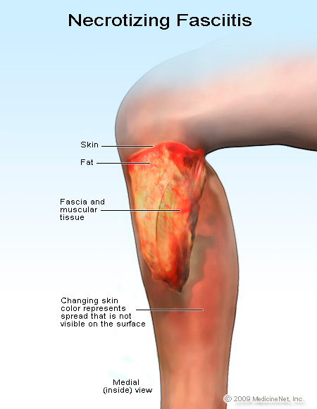 Photo of necrotizing fasciitis (flesh-eating disease)